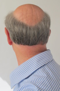 androgenic alopecia in men